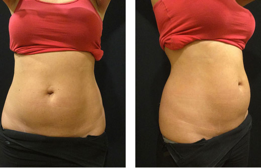 Stomach after CoolSculpting treatment