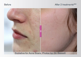 Sublative Acne Treatment