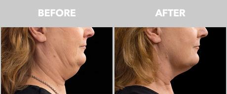 get rid of chin fat