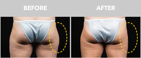 eliminate outer thigh fat